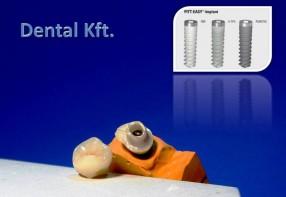 Szóló implantátum, egyedi cirkon-fejjel, és felépítménnyel...