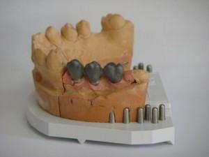 Fémkerámia implantátumra