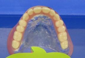 Acryl kivehető fogsorok
