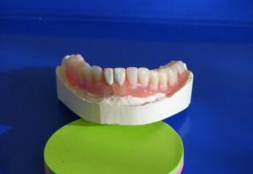 Valplast fogsorok