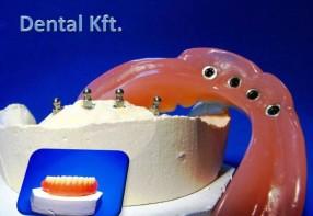 Akrill protézis, IMTEC implantátum rendszerrel...