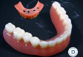 IMTEC implantátum rendszerrel készült újabb fogmű...